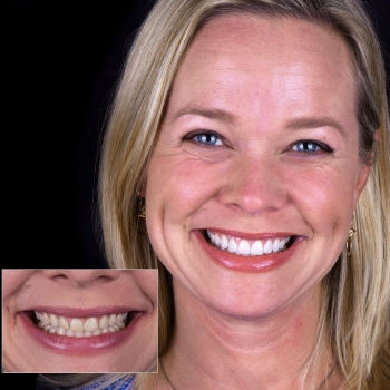 SMile-Makeover-with-Crown-Lengthening-by-Jeff-Trembley