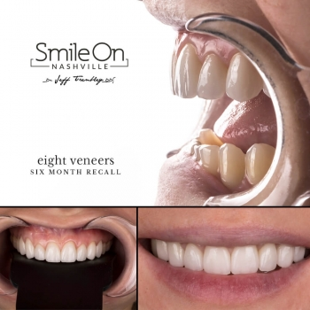 Smile-Makeover-Veneers-Six-Month-Followup