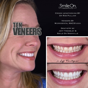 Smile-Makeover-with-Gingivectomy-by-Smile-On-Nashville