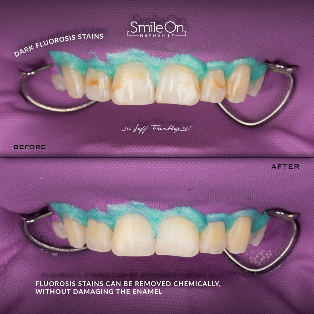 Fluorosis-Smile-On-Nashville