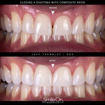 Repair-your-teeth-by-Jeff-Trembley-Smile-On-Nashville