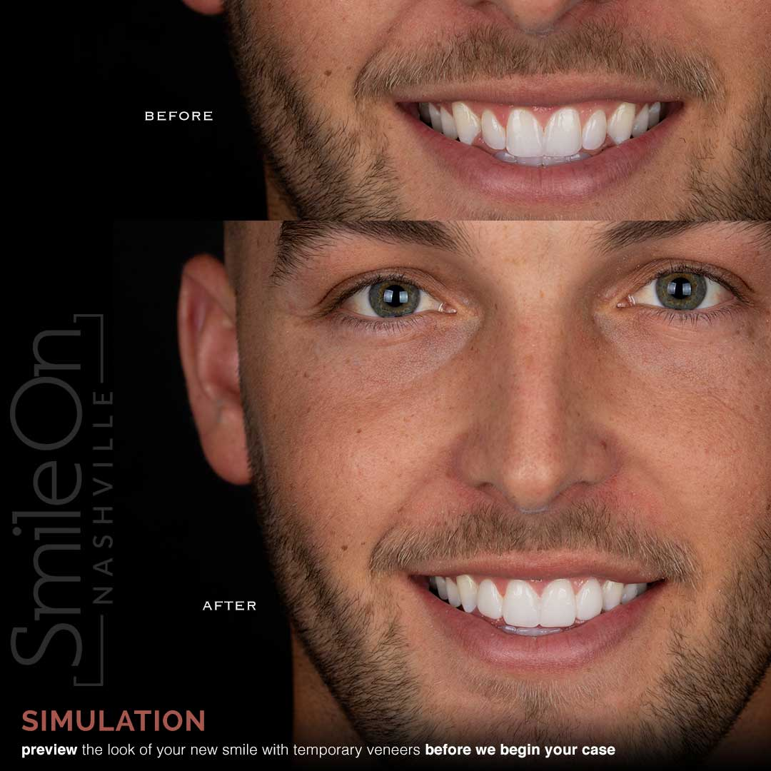 Smile-Mockup-with-Jeff-Trembley-dds-Smile-On-Nashville