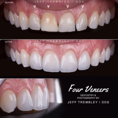 Smile-On-Nashville-Smile-Makeover-Veneers-1