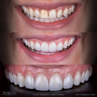 Smile-On-Nashville-Smile-Makeover-Veneers-10