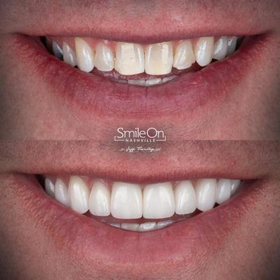 Smile-On-Nashville-Smile-Makeover-Veneers-11