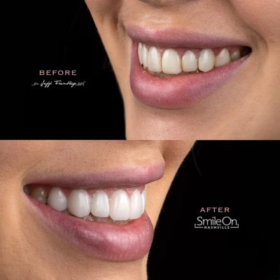 Smile-On-Nashville-Smile-Makeover-Veneers-12