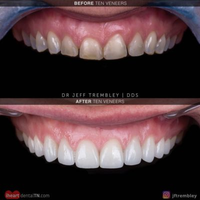Smile-On-Nashville-Smile-Makeover-Veneers-2