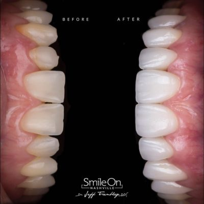 Smile-On-Nashville-Smile-Makeover-Veneers-4