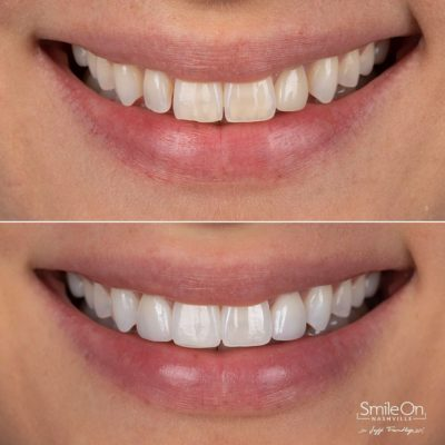 Smile-On-Nashville-Smile-Makeover-Veneers-6