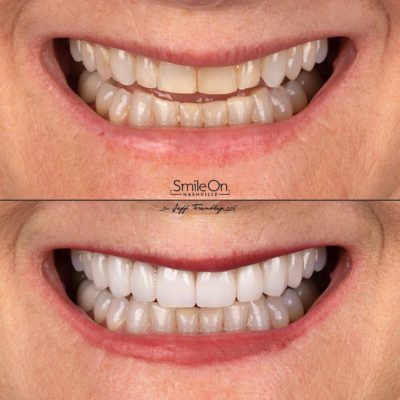 Smile-On-Nashville-Smile-Makeover-Veneers-7