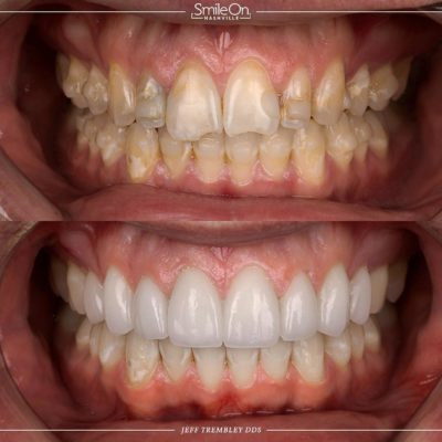 Smile-On-Nashville-Smile-Makeover-Veneers-8