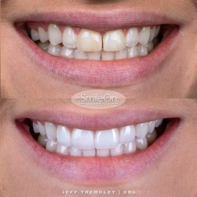 Smile-On-Nashville-Smile-Makeover-Veneers-9