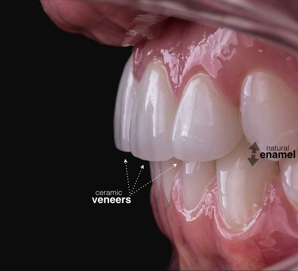 Veneers-Up-Close-by-Smile-On-Nashville